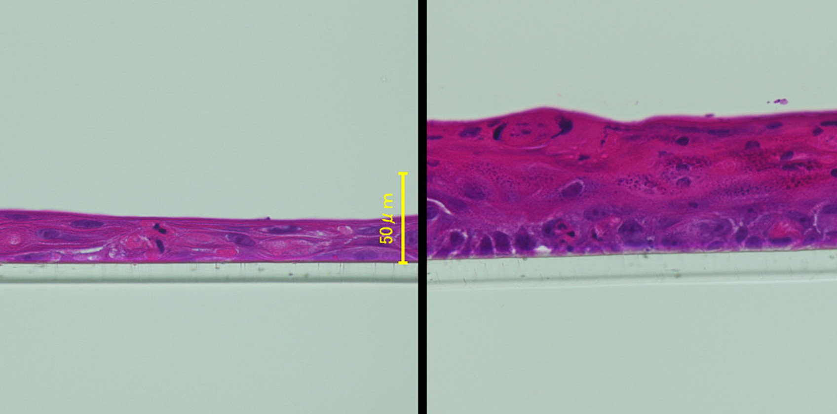 Fujifilm Creates Genome-Edited Epidermis Model, Replicates Changes Caused by Age