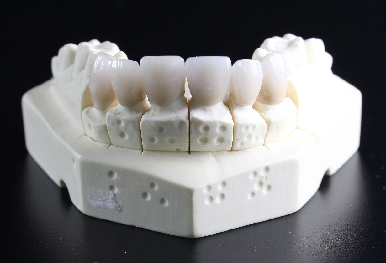 Mitsui Chemicals Prepares for Global Launch of Dental 3D Printer